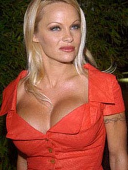 pamela_anderson_implants